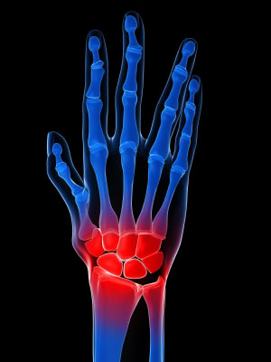 arthritis treatment for hands Arthritis Treatment For Hands